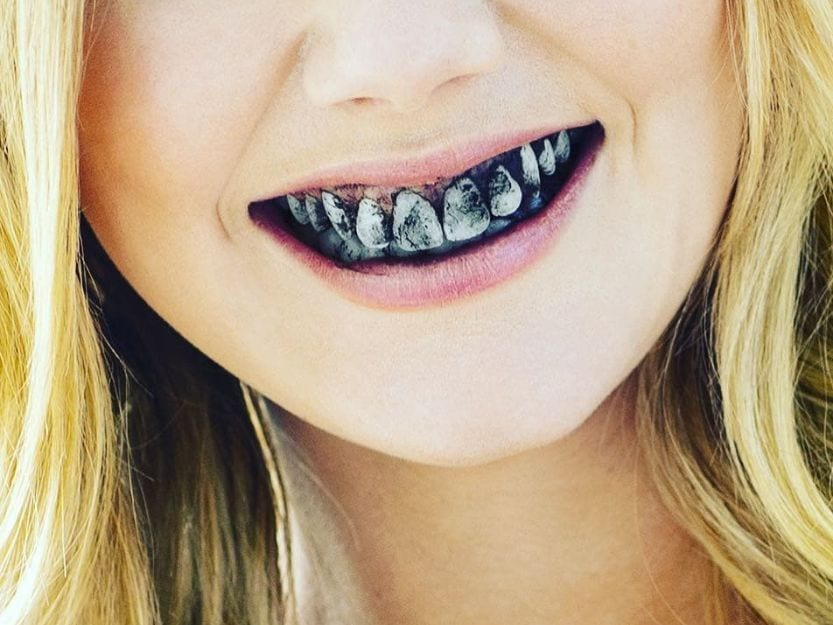 Mouth full of black toothpaste
